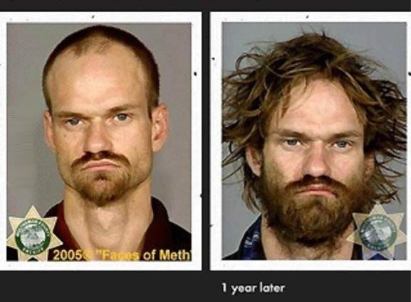 Meth can cure baldness