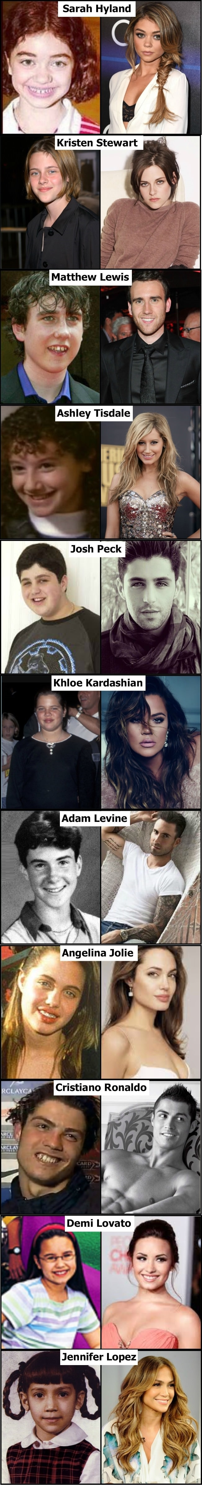 Celebs now & then