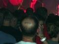 Tattoo hair in my bald spot?
