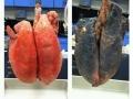 Non-smoker & smoker lungs