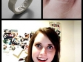 Overly attached ring