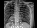 X-Ray Proposal