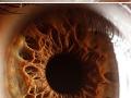 Everyone's eye is unique