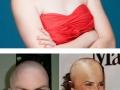 If female celebs were bald