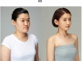 Before & after photos from Korean plastic surgery makeover show